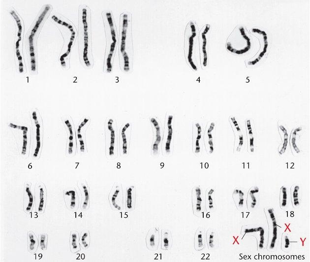 external image 07_07a-Klinefelter_syndrome.jpg